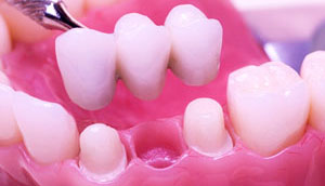 Dental Bridges - Dr. Charles Flowers